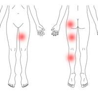 股関節 痛 産後