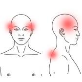 頭痛の症例