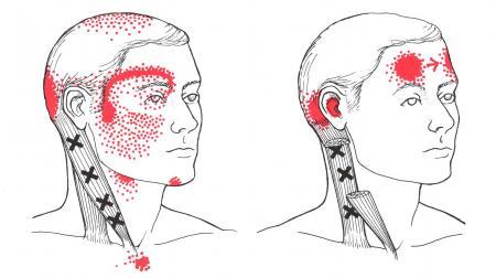 頭痛の原因(胸鎖乳突筋編)について | 稲垣カイロ